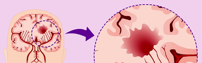 Illustration of brain with a stroke